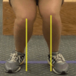 Knees dropping inward of the foot is a predictor of risk for ACL tear