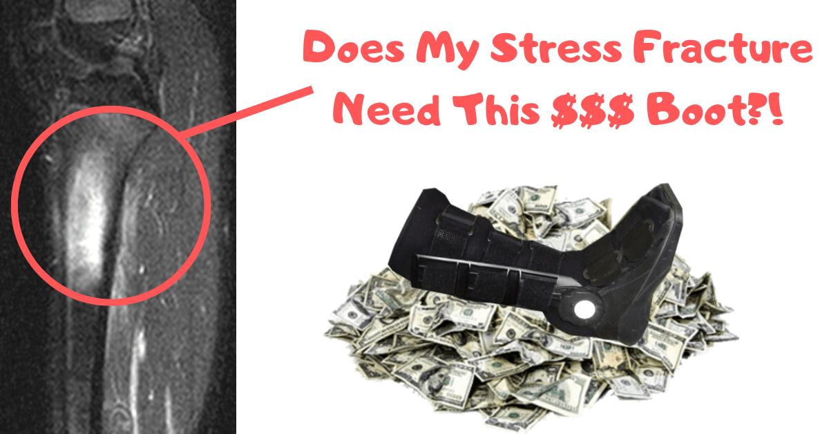 No all stress fractures need an expensive boot