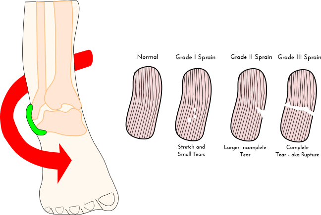 Ligament sprain grading by physioworks physical therapy in huntsville alabama