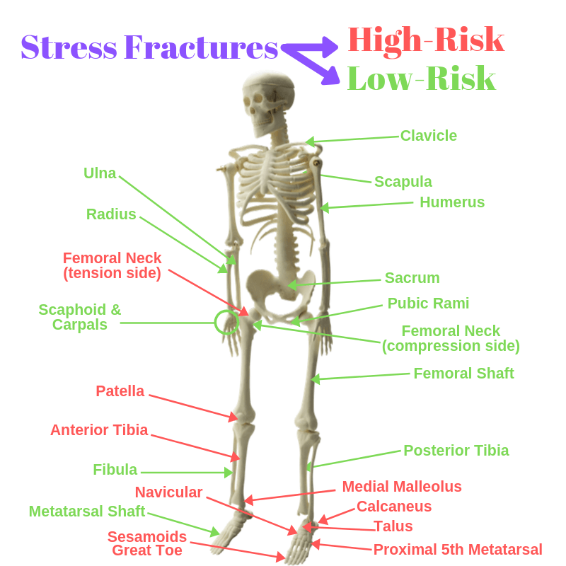 What Stress Fractures are high risk and low risk