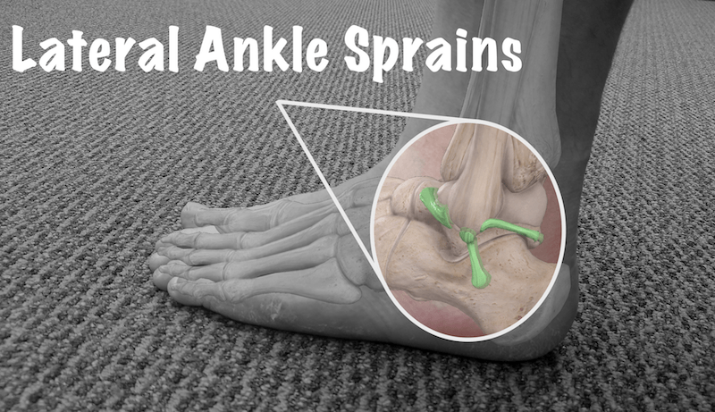 lateral ankle sprain is best treated by physical therapy in huntsville alabama at physioworks sports and wellness